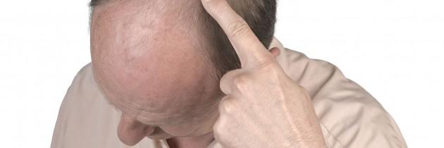 17389193_l-Human-hair-loss-adult-man-hand-pointing-his-bald-head-630x210