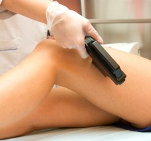 8592573_xl-laser-hair-removal