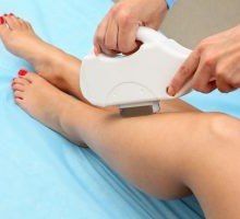 9344405_xl-laser-hair-removal-300x200